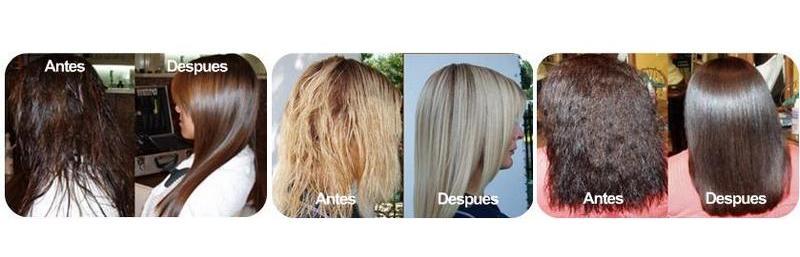 Los cabellos ya algunos años caen fuerte