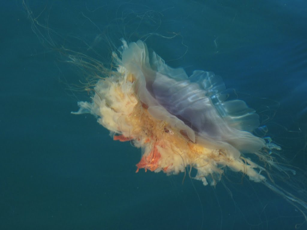 How to Treat a Jellyfish Sting  Verywell  Know More Feel
