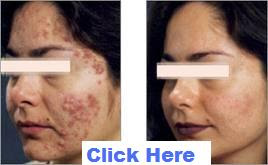Acne No More - Cure Acne Naturally