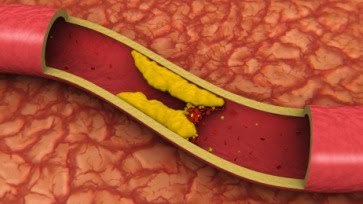 http://3.bp.blogspot.com/_P9gydy3an44/THLB9Ng6UzI/AAAAAAAAMJ4/VTaUpIMnY88/s1600/Arteriosclerose+(aderverkalking).jpg