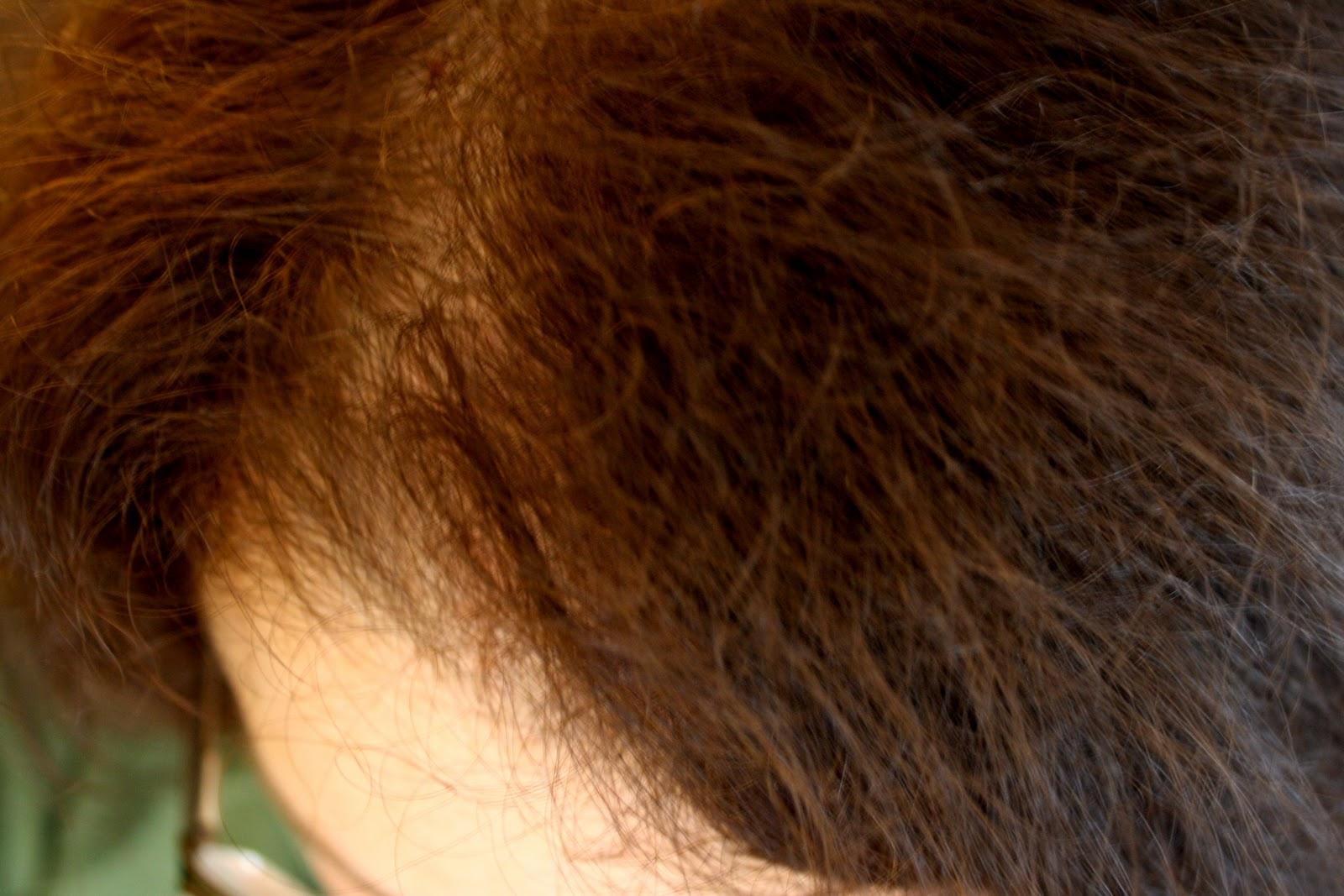 Reasonably Well: Hair Today, Gone Tomorrow