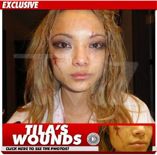 Tila Tequila claims brutal attack at Juggalos concert; video?