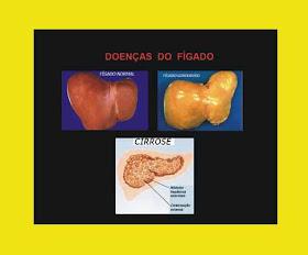 doencas_figado.jpg