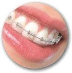 Ortodontia + Estética