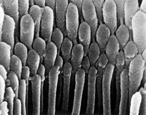 Слуховые волосковые клетки