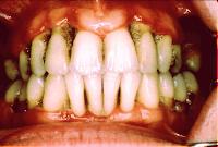 piorrea infeccion encia periodontal periodontitis