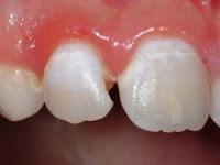 mancha blanca en dientes