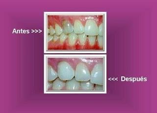 blanquear diente con endodoncia o tratamiento conducto