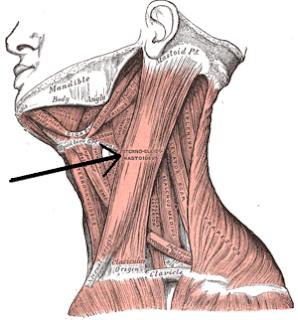 El dolor y el cuello