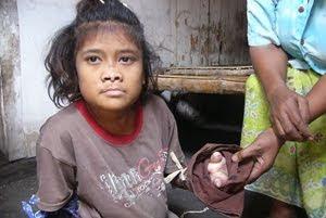 Alfi's Blog: Gadis Kanibal, Pemakan Daging Sendiri