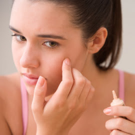 Treatment For Teen Acne
