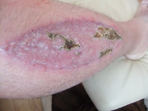 Biggest Scab Ever