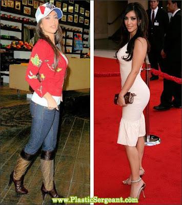 Kardashian Buttock on Kim Kardashian Buttock Augm3 Jpg