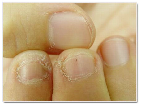 Subungual Warts: Causes, Complications, Treatment and Prevention