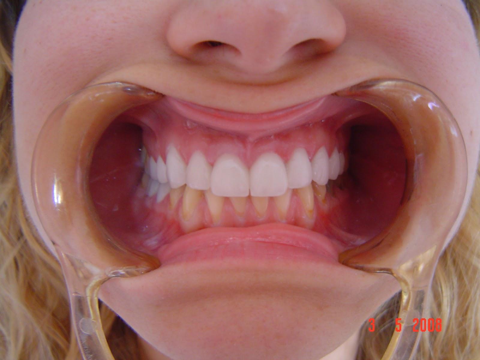 Diş ve Diş Eti Hassasiyeti Nedir