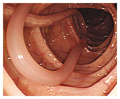 паразиты в организме человека народные методы лечения