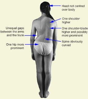 A woman is facing away from the camera, with arrows pointing to various parts of body to describe them.  Head not centered over body.  One shoulder (right) higher.  One shoulder blade (right) higher and possibly more prominent.  Spine obviously curved (to the left).  One hip (left) more prominent.  Unequal gaps between the (left) arm and the trunk.  Description by Anna