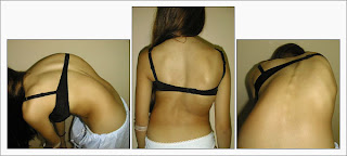 Three images of the back of a young woman.  In each, there is an obvious curvature of her spine.  It's an S-style curve.  The middle portion of her back, around the shoulder blades, is off-set to the right, while the shoulders and hips line up relatively evenly.  Descriptive text by Don.