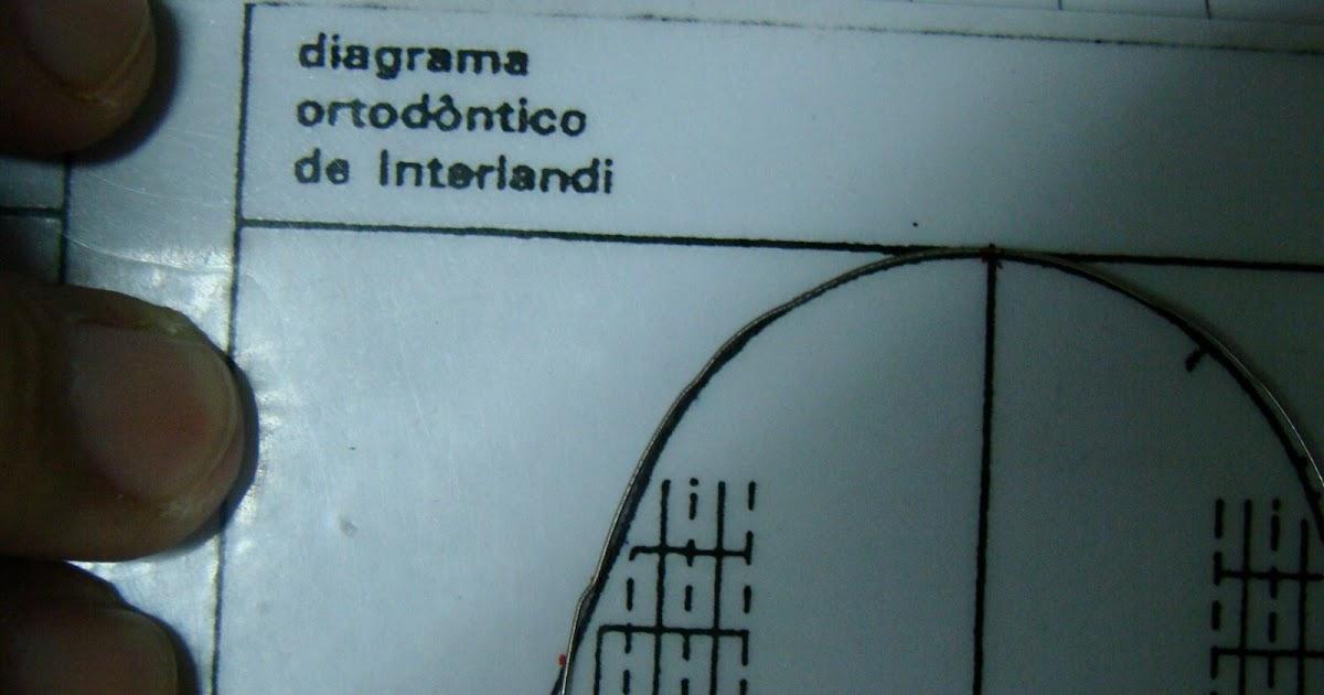 Curso online de ortodoncia doblecez de primer orden for W de porter ortodoncia