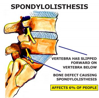 spondylosis and spondylothesis Kilian, robert, and lambl first described spondylolysis accompanied by spondylolisthesis in the literature in the mid 1800s the number of different spinal.
