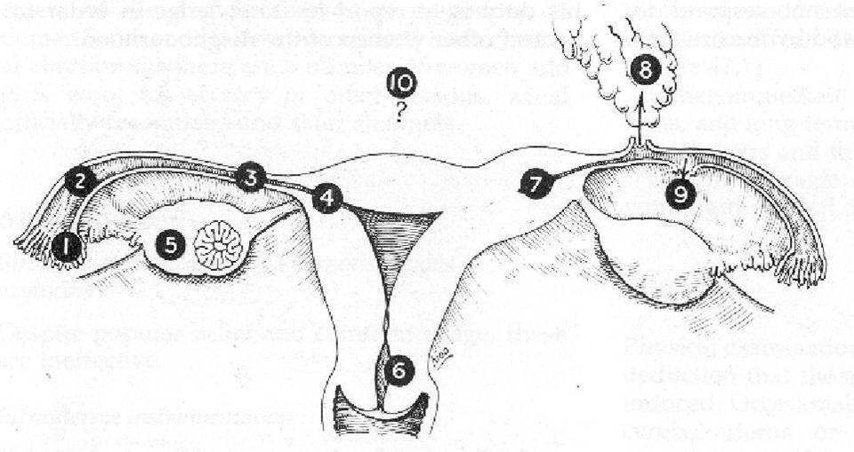 Medical Lecture Notes Online: ECTOPIC PREGNANCY