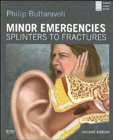 Minor Emergencies. Splinters to Fractures