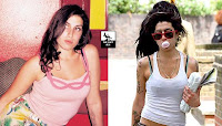 Amy Winehouse has emphysema