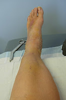 Click for Larger Image of Foot Without Cast