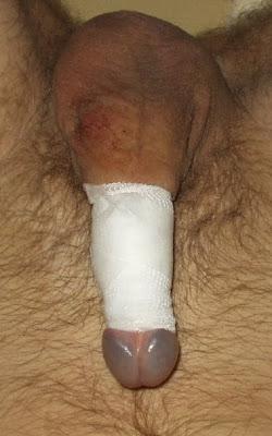 For that Circumcised female masturbation abstract