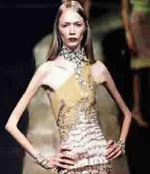 anorexia models that died She was young, happy and beautiful she was successful in her modelling career, walking runways all over the world, in various fashion weeks her downward spiral into.