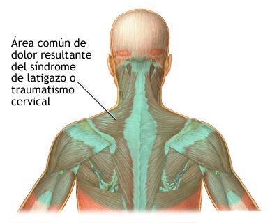 acecho músculo