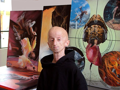At the age of four, he was diagnosed with Progeria.