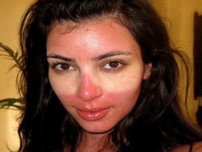 casco off road para verano? Kim+Kardashian+quemada
