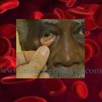 Noções Gerais sobre a anemia, doença que afeta o sangue.