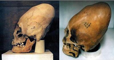 Peruvian Skulls