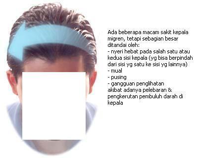 sakit kepala (migren)