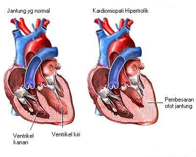 Kardiomiopati Hipertrofik