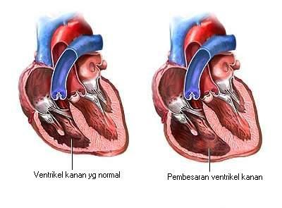Pembesaran ventrikel kanan
