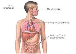 Infeksi Sitomegalovirus