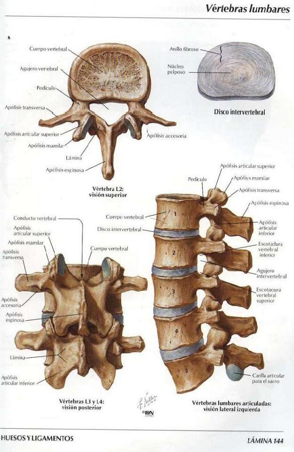 Kifoz de la vértebra cervical - Fractura vertebral cervical C5