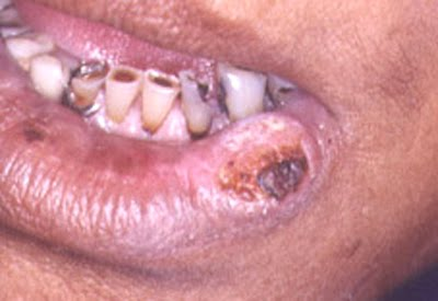Practical Strategy For Oral Cancer Management In Dental ...