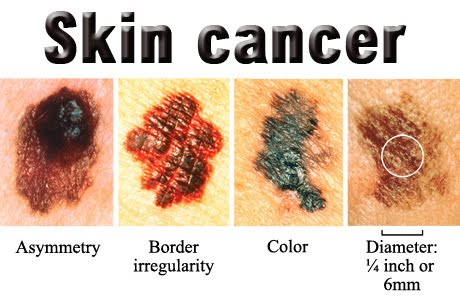 Pictures of Melanoma - Healthline