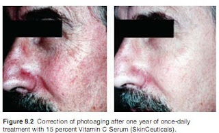 vitamin+c+and+photoaging+results Does anti ageing skincare work?
