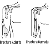 El cirujano vascular el miembro viril