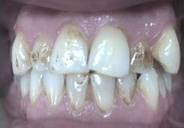 stained discolored teeth