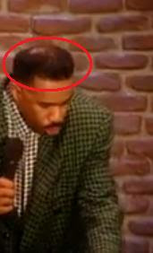 Steve Harvey Hair Hairline And Haircut To Fight Baldness