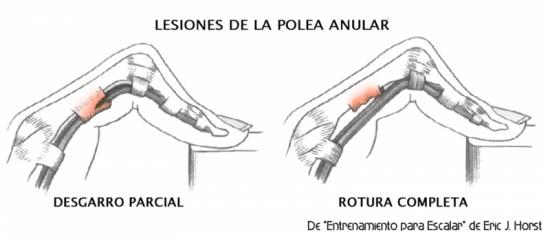 Lesiones de dedos | SOLOMOCHILA