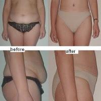 Riscurile abdominoplastiei