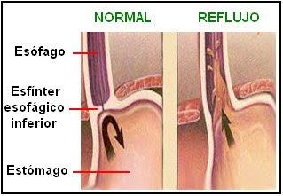 La acidez del estómago cursa con una sensación de ardor en el pecho y en la faringe, con un grado de dolor variable. Se pone de manifiesto al relajarse el esfínter esofágico inferior (cardias) sin contenido estomacal, con el consecuente avance retrógrado de ácido clorhídrico desde el estómago hacia el esófago, ocasionando su irritación.