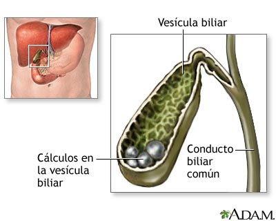 ubicación anatómica de la vésicula biliar y cálculos alojados en ella
